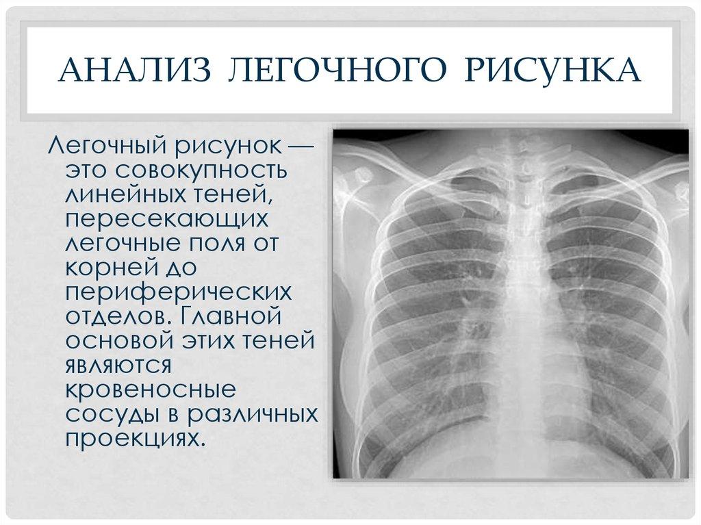 Флюрография легочный рисунок
