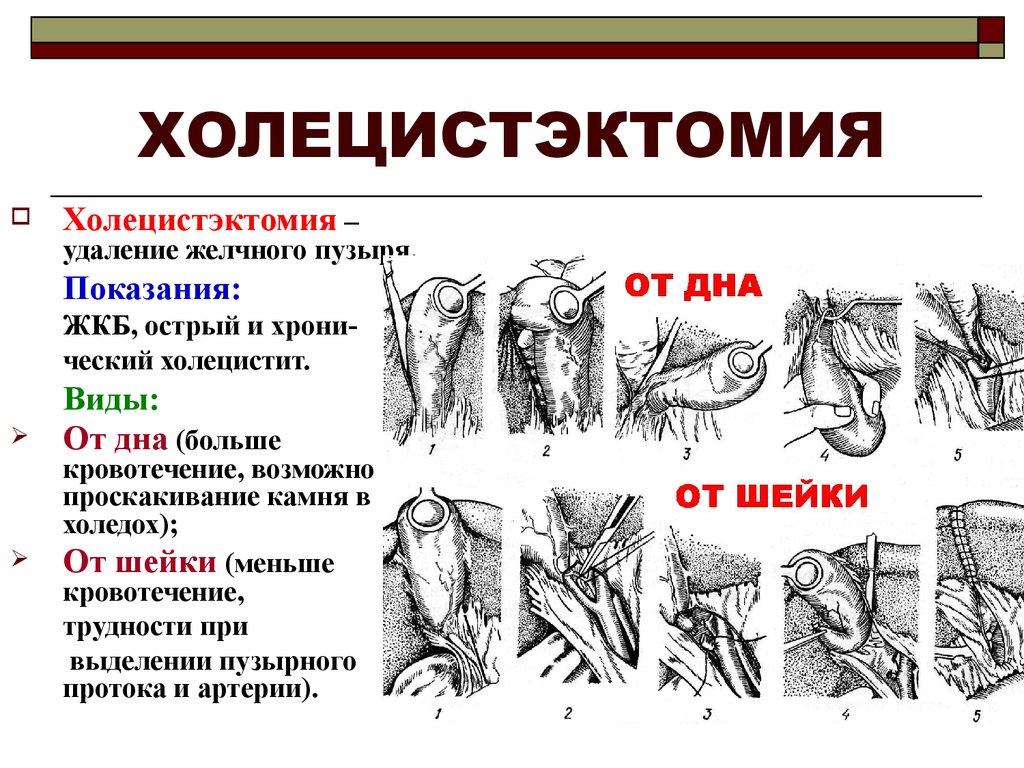 Laparoscopic cholecystectomy anatomy