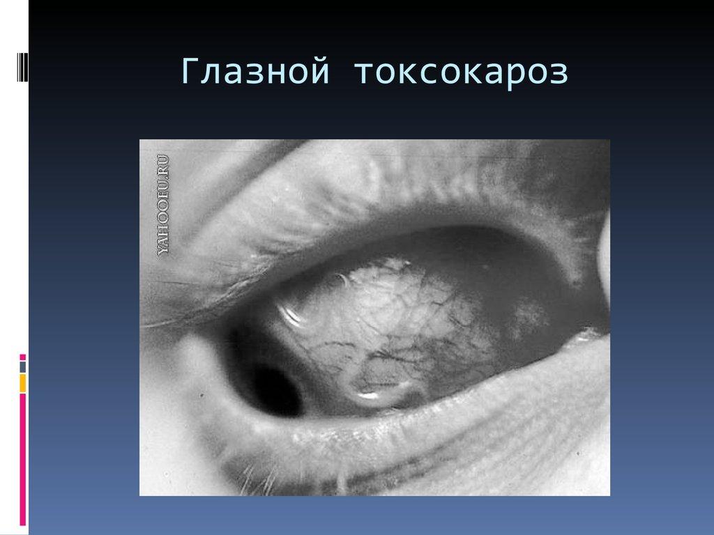 плоские черви у человека фото