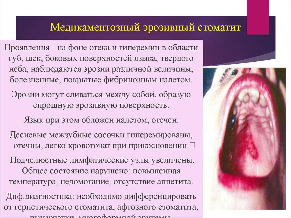 Как лечить стоматит у взрослых в домашних условиях отзывы