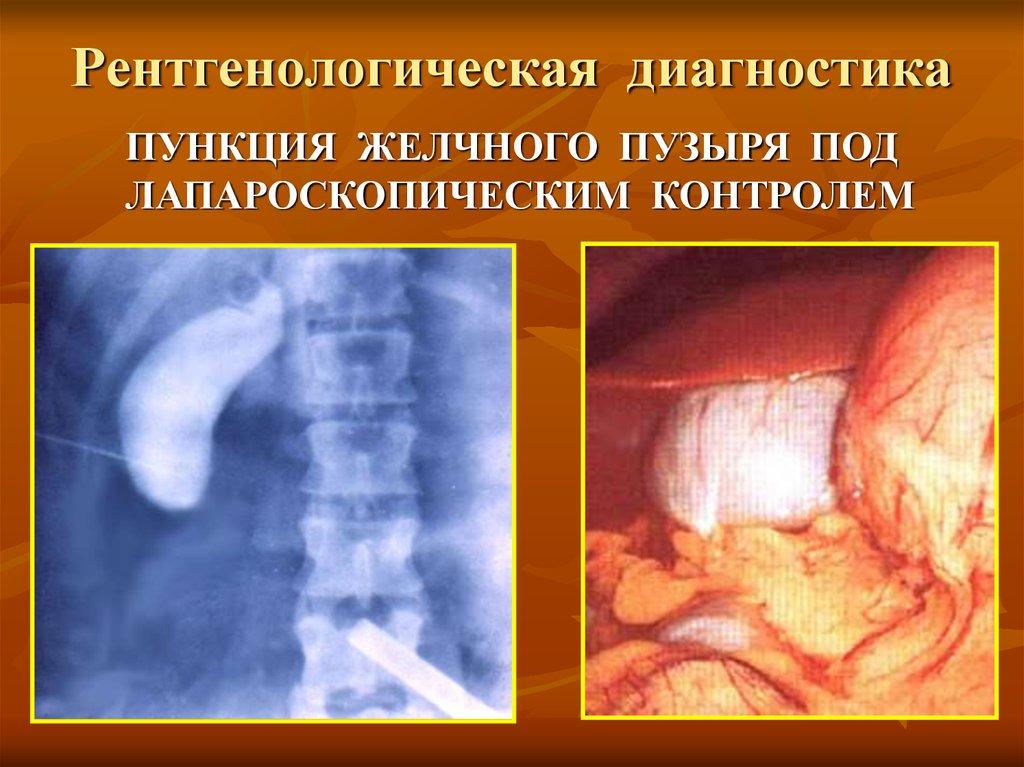 Рентгенологическая диагностика
