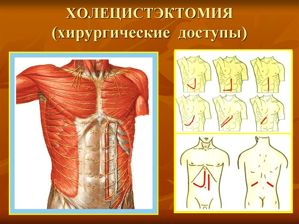 Справка о болезни кпи