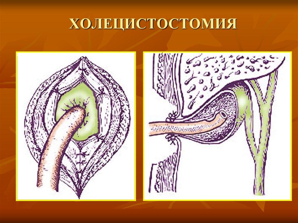 Беременность 38 недель болит одна грудь