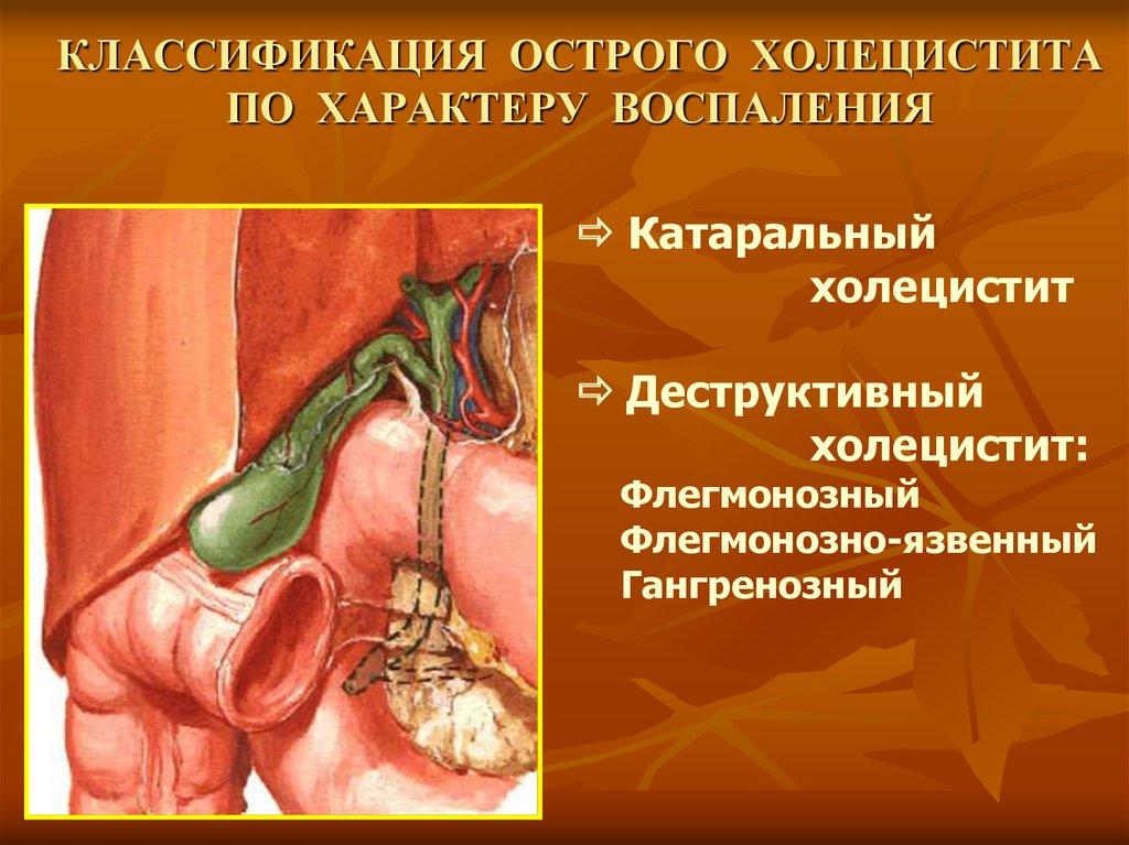 Хронический гастродуоденит рефлюкс эзофагит