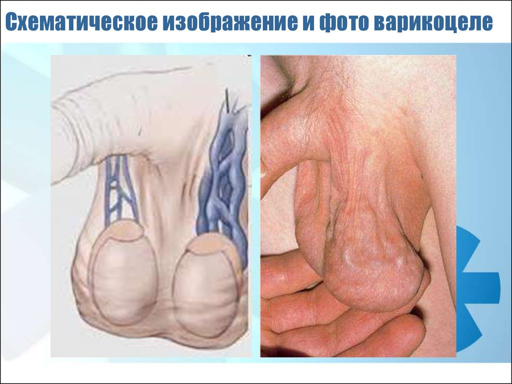 лечение паразитов чесноком отзывы огулов