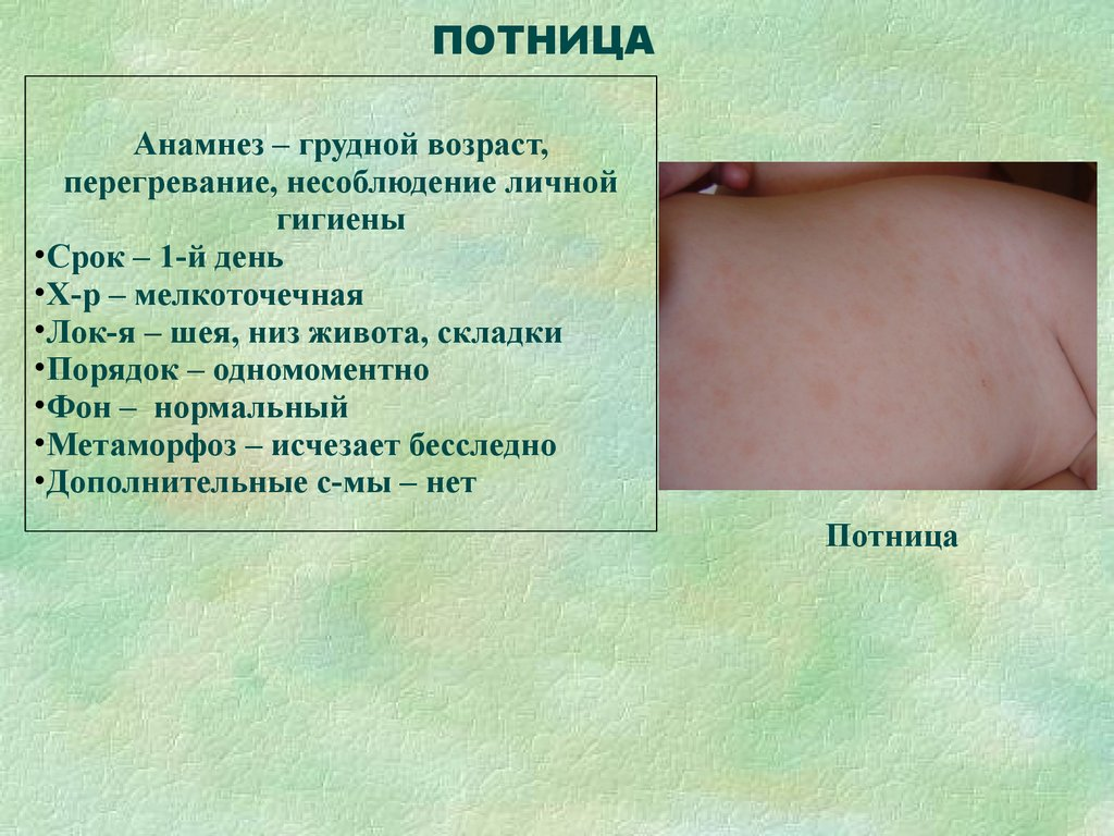 Как выглядят опрелости у грудничка