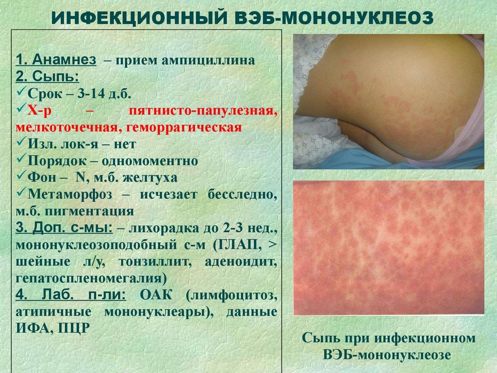 Инфекционная и неинфекционная сыпь