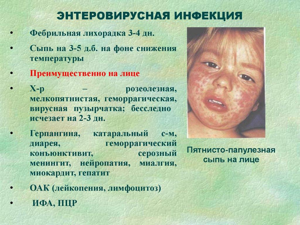 Лечение энтеровирусной инфекции в домашних условиях 873