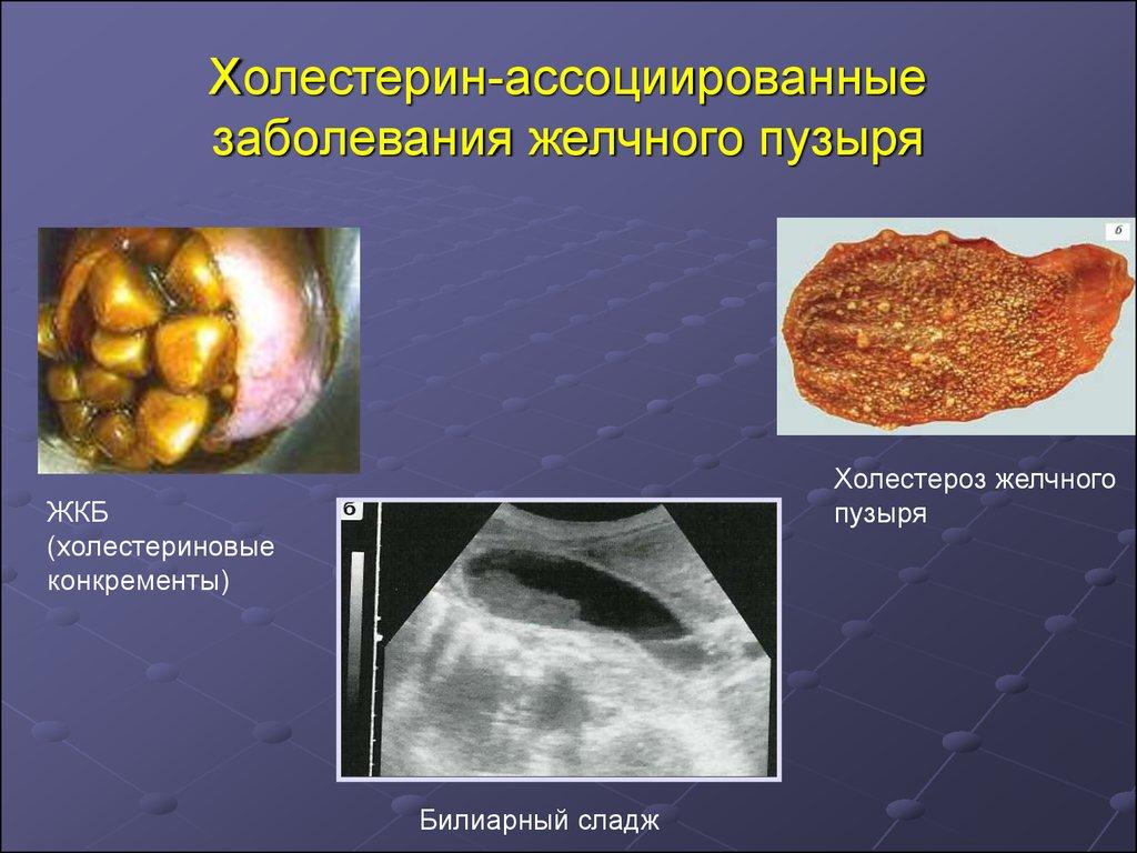болезнь холестерин в крови