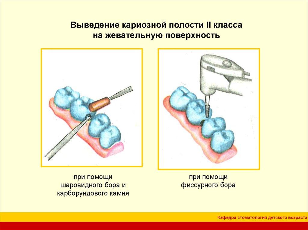 Презентация на тему:  кафедра стоматология детского возраста //// особенности препарирования кариозных полостей по