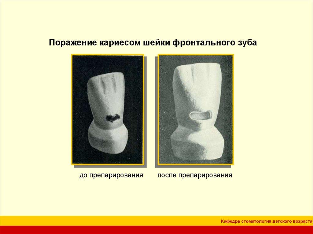 Кафедра стоматология детского возраста //// особенности препарирования кариозных полостей по блэку
