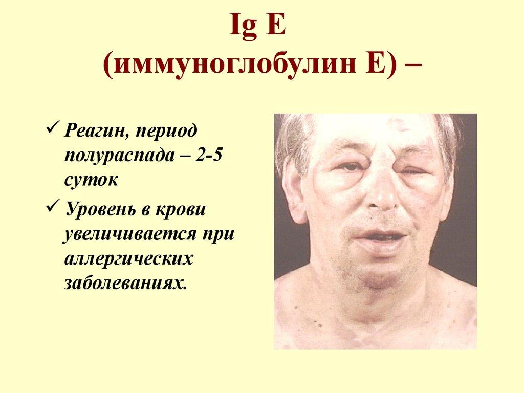 иммуноглобулин е роль в аллергии