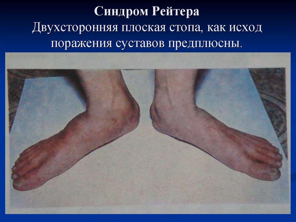Артрит при хламидиозе лечение