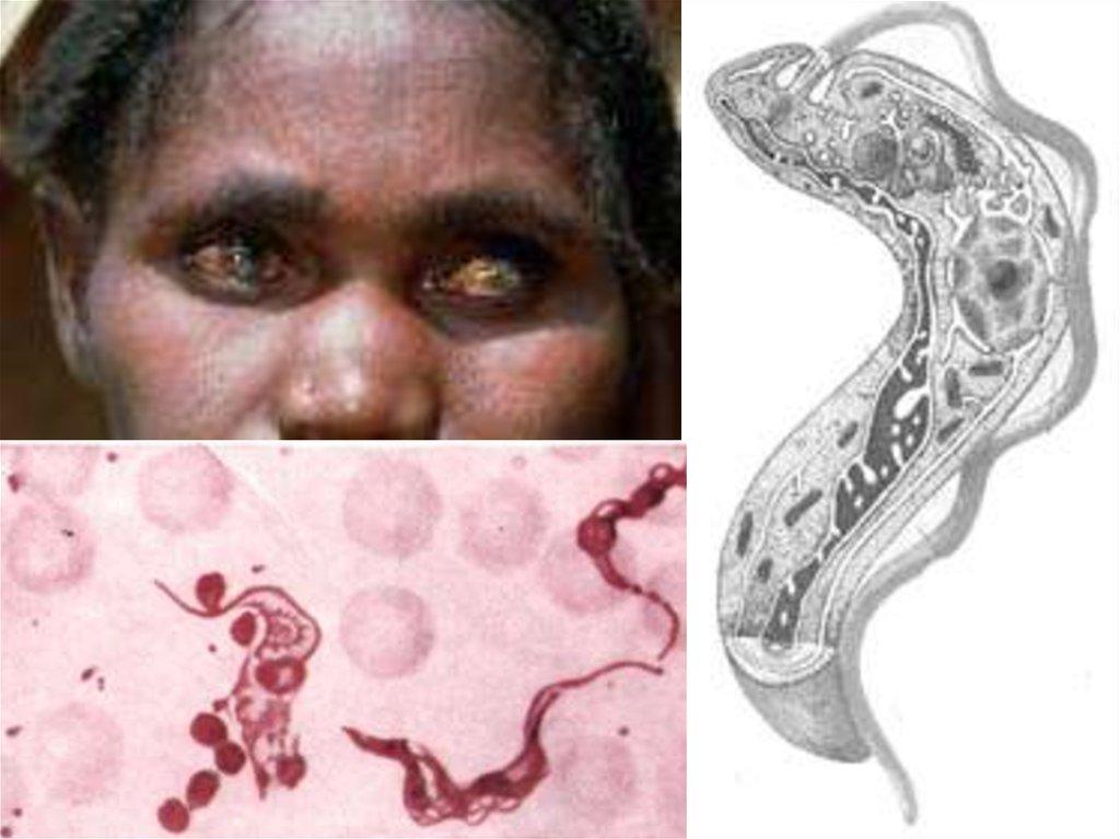 паразиты жив человеке