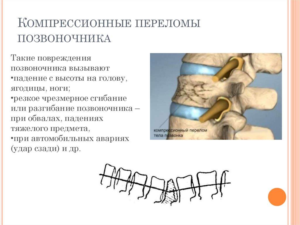 При компрессионные переломы поясничные позвоночника