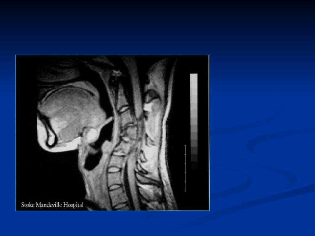 что такое артрозо артрит голеностопного сустава