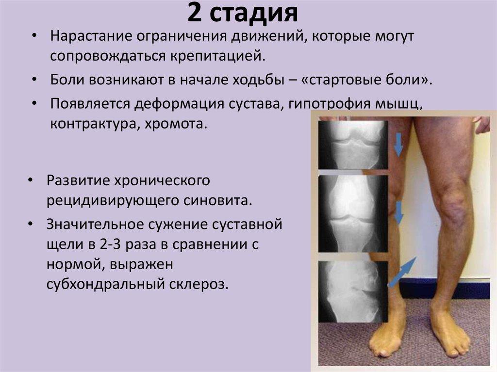 деформация коленного сустава как лечить