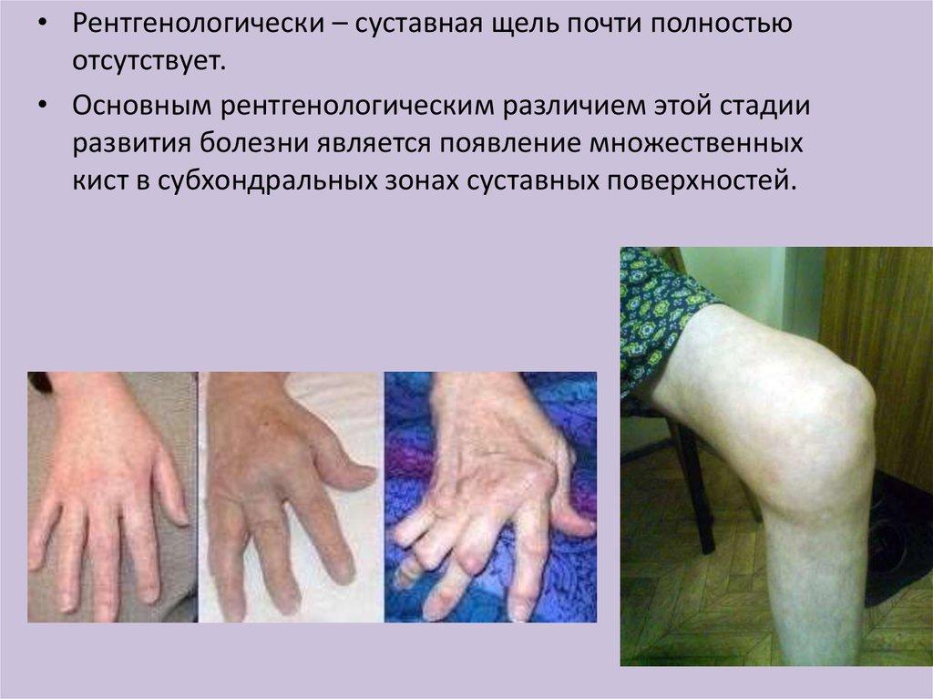 медицина лекарство артроз