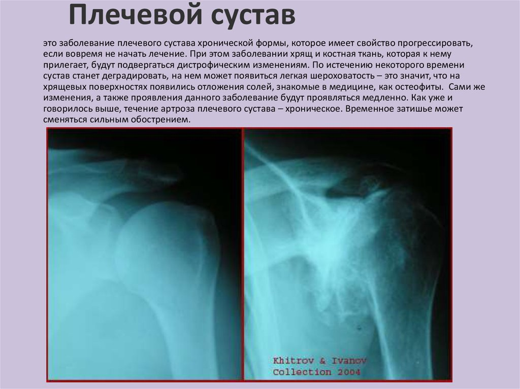 лечение от артроза плечевого сустава