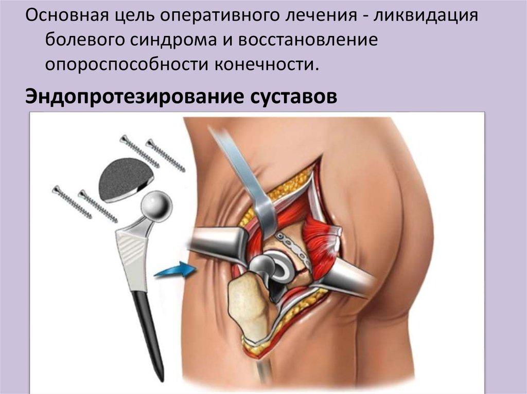 Самое эффективное лечение артрита