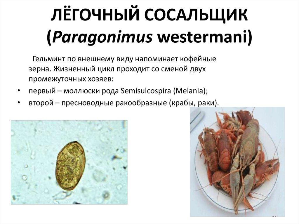 лечение от паразитов в екатеринбурге