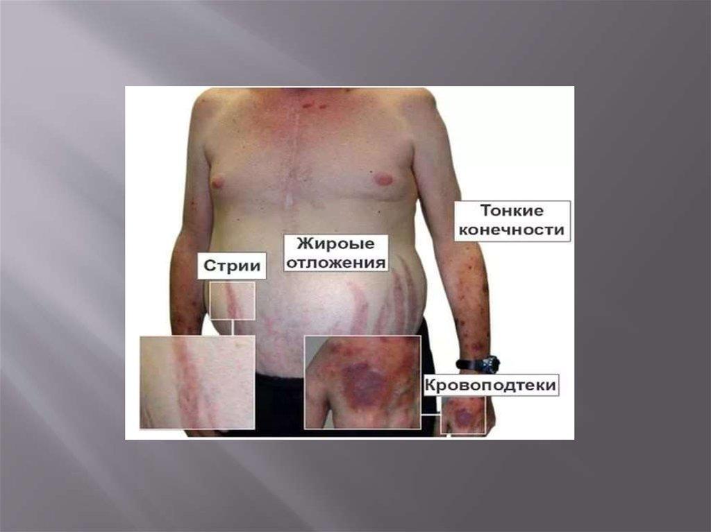 препараты гормоны задней доли гипофиза