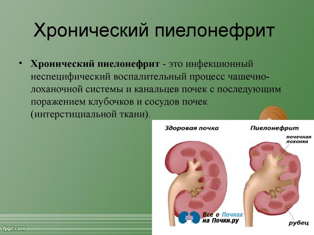 аллергия от паразитов что делать