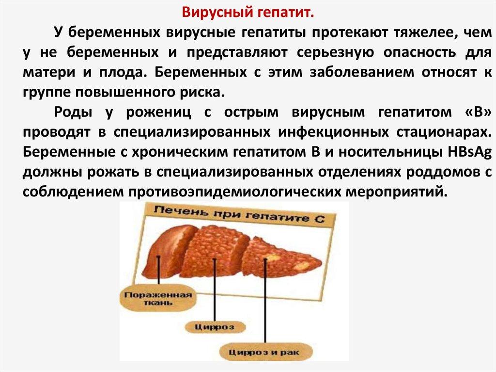 Лечить гепатит с в днепропетровске