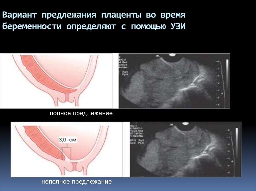 32 неделя беременности предлежание плаценты