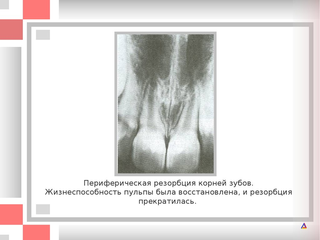 Лечение мышечных болей в спине и шее
