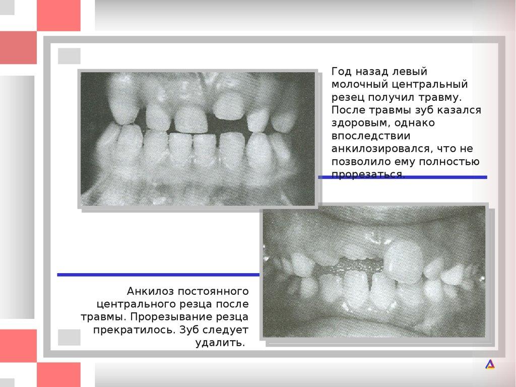 Резорбция корня зуба лечение