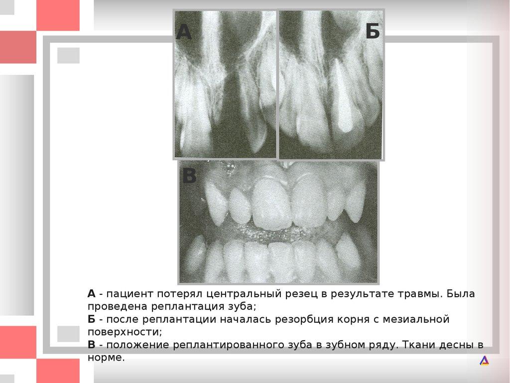Как лечить вирус папилломы народное средство