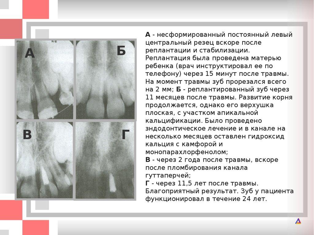 Блокада нерва препараты для лечения