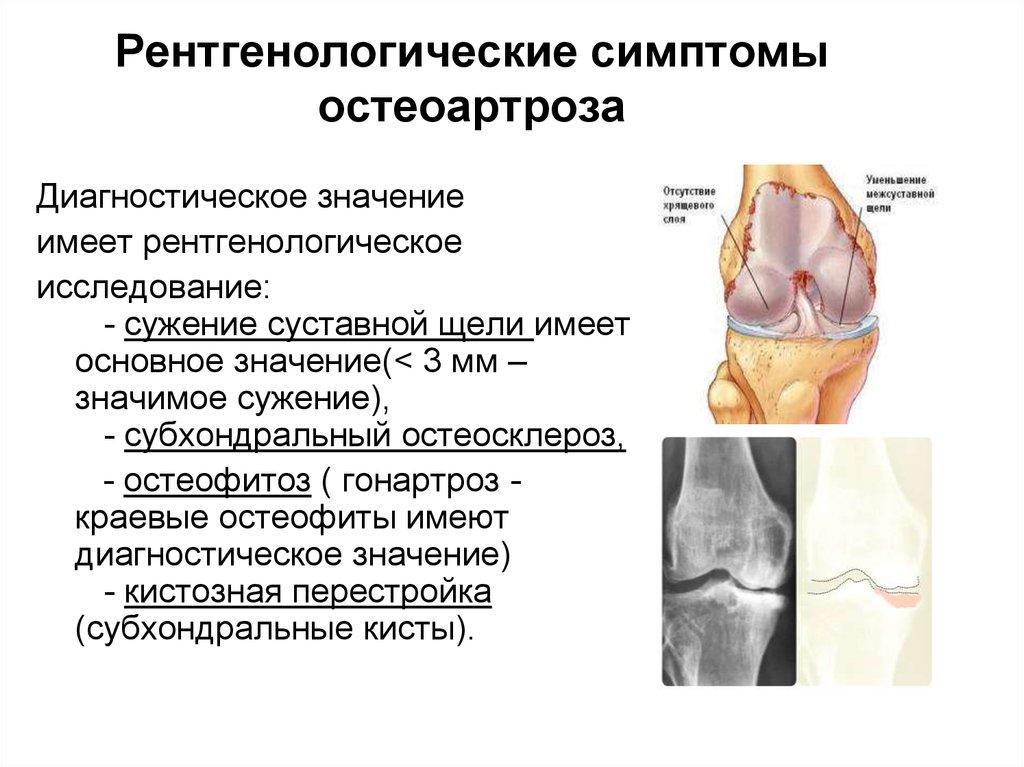 признаки артроза суставов