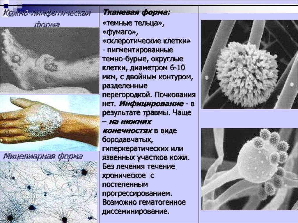 Грибовидный микоз кожи лечение