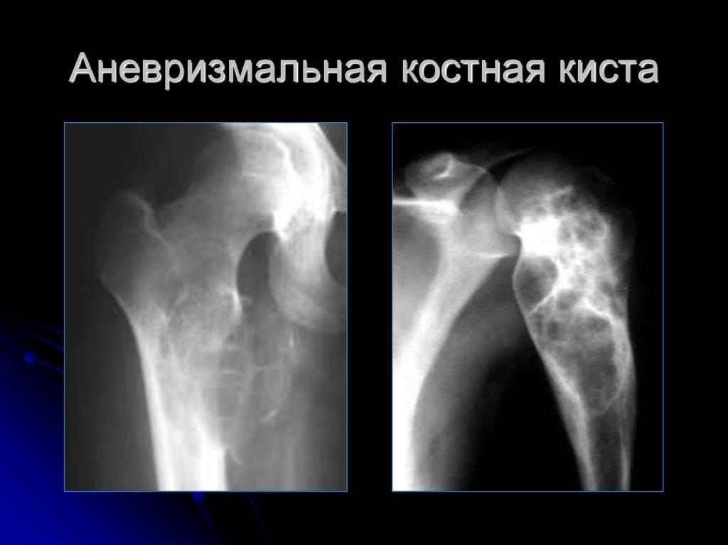 аневризма тазобедренного сустава