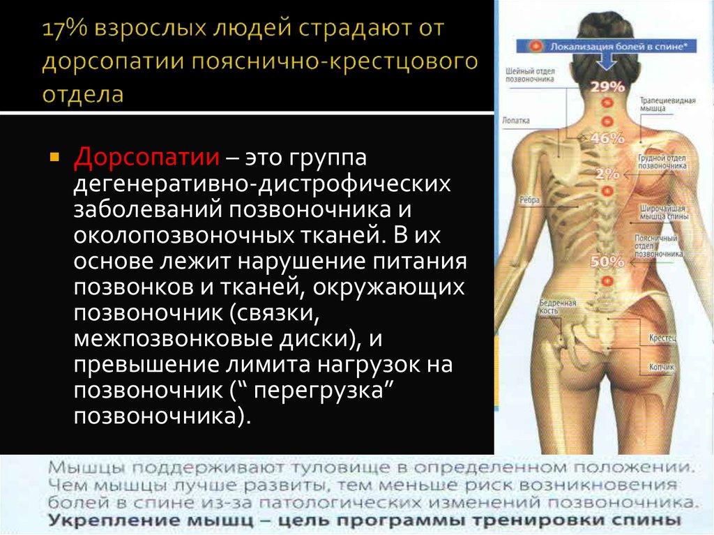 Хондроз поясничного отдела позвоночника: симптомы