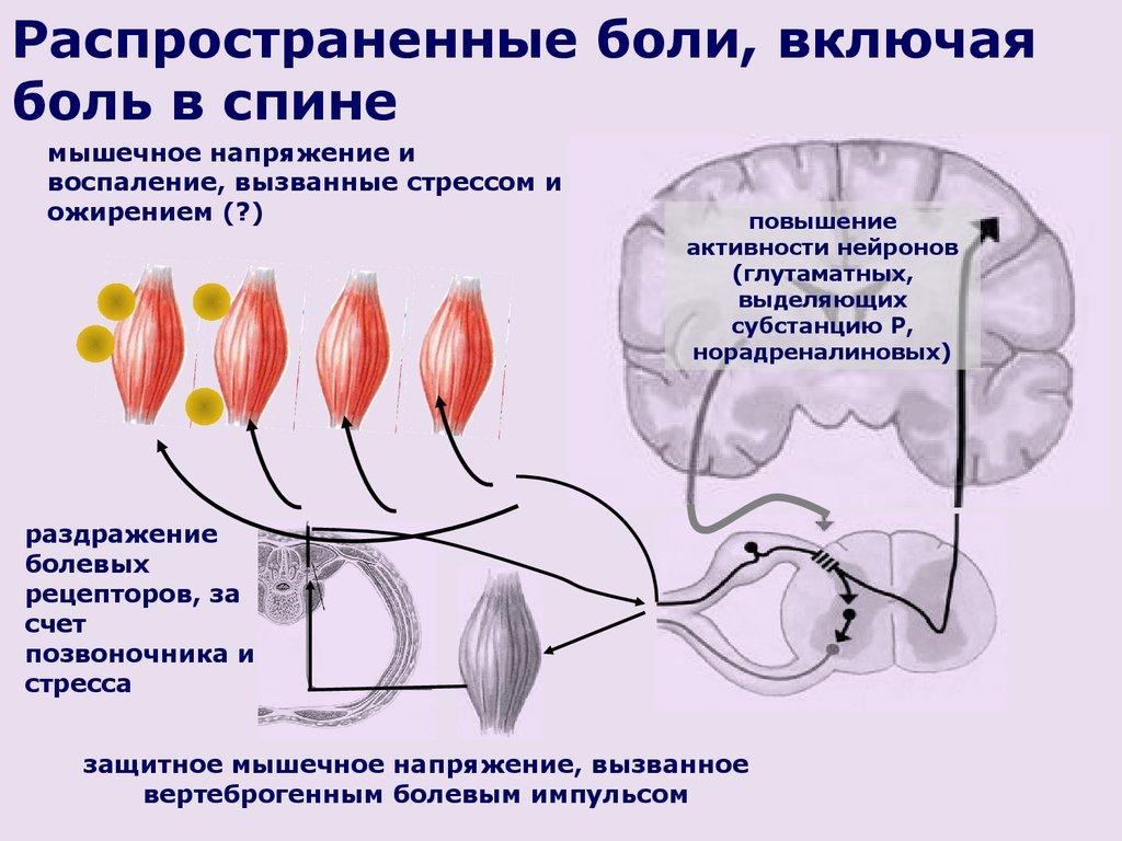Тошнота и поясничный остеохондроз