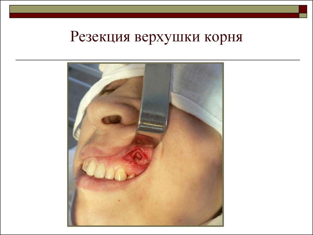 Резекция верхушки корня зуба или что