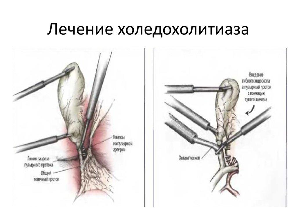 Лечение цистита лечение боли