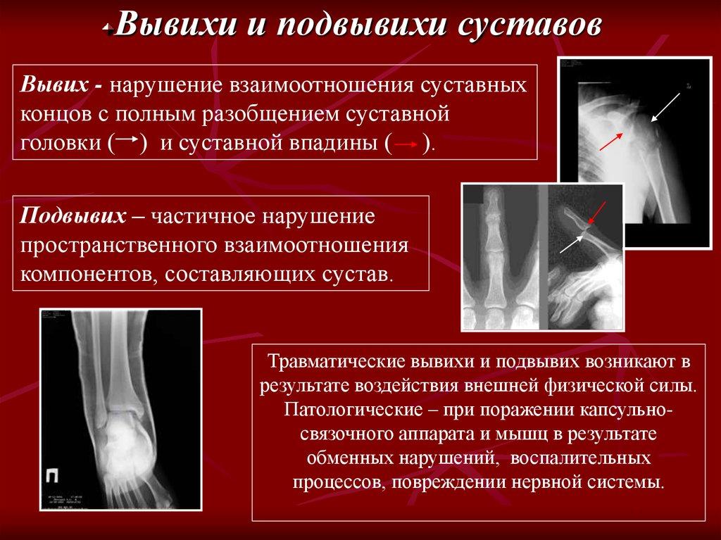 повреждение капсульно-связочного аппарата сустава