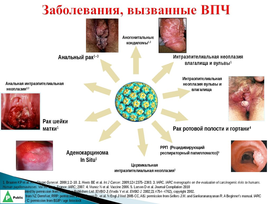Папилломавирусная инфекция-вызов XXI века. Вакцинопрофилактика - безальтернативная первичная профилактика рака шейки матки - onl