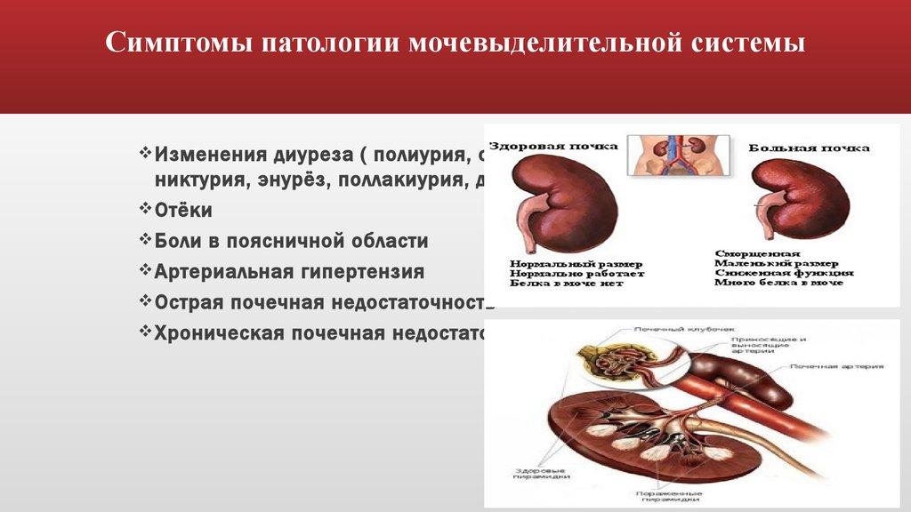 наблюдение и уход за больными с нарушениями функций почек и мочевыводящих путей