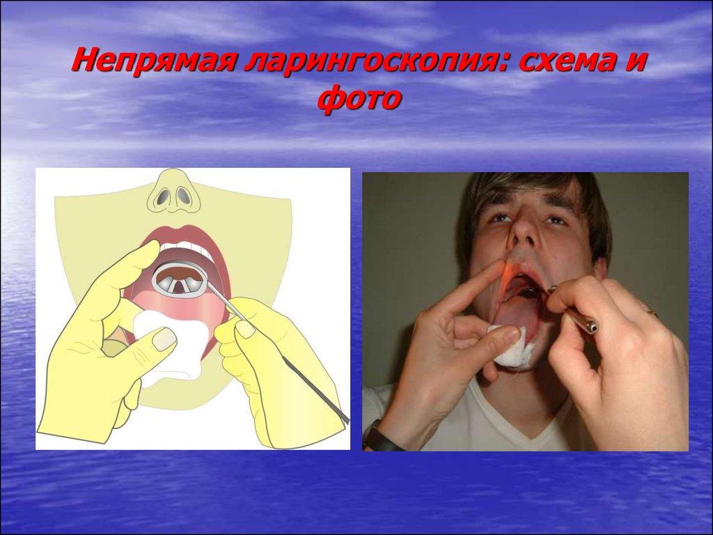 Ларинготомия