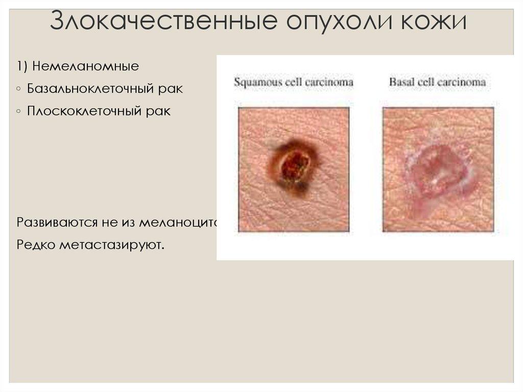 рак кожи фото симптомы лечение № 66949  скачать