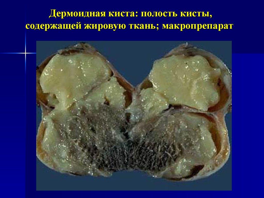 Удаление кисты яичников