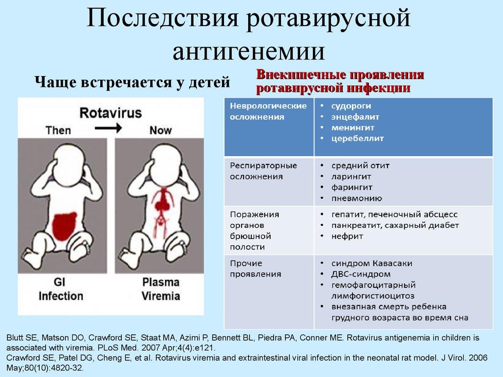 Ротавирус лечение у беременных 709