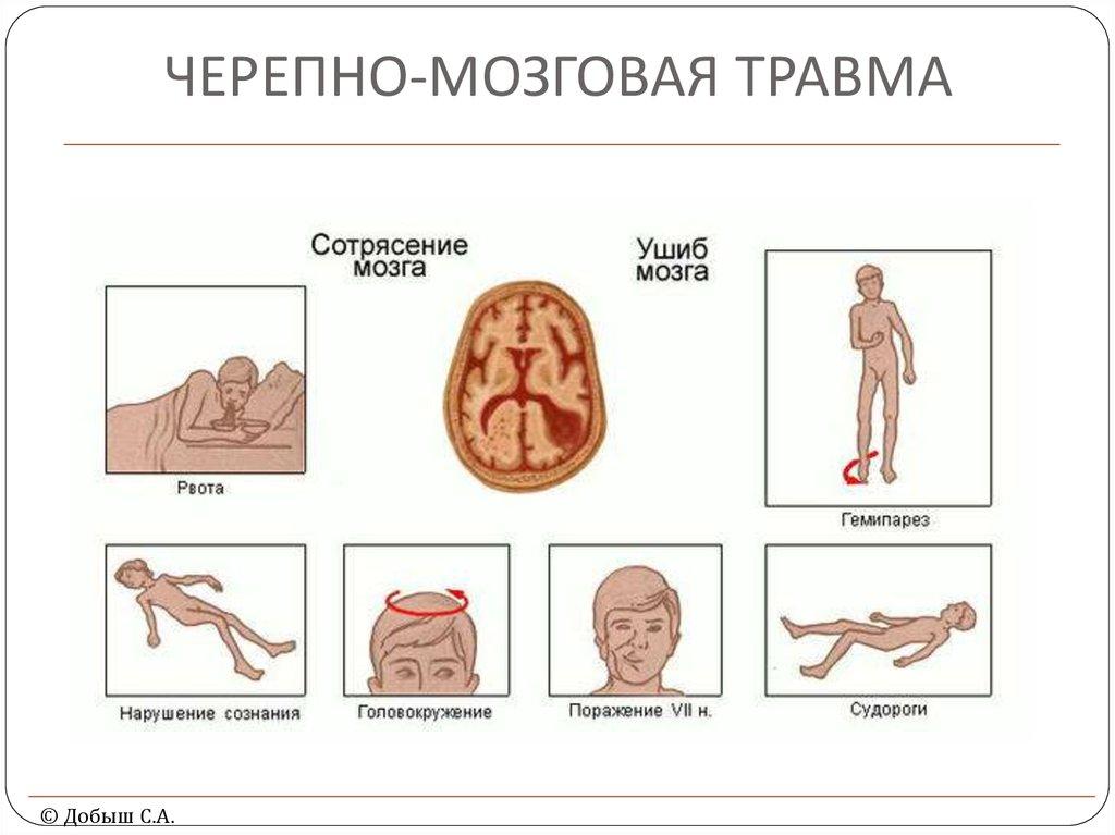Помощь ребенку при сотрясении мозга рвота