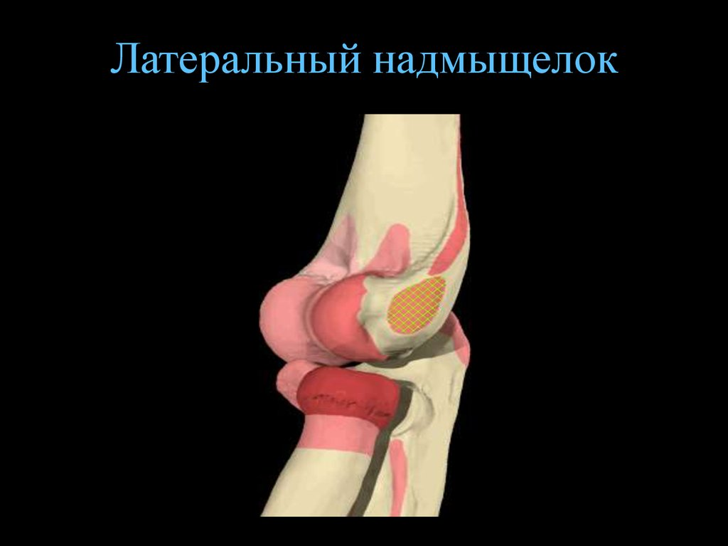 острый артрит локтевого сустава