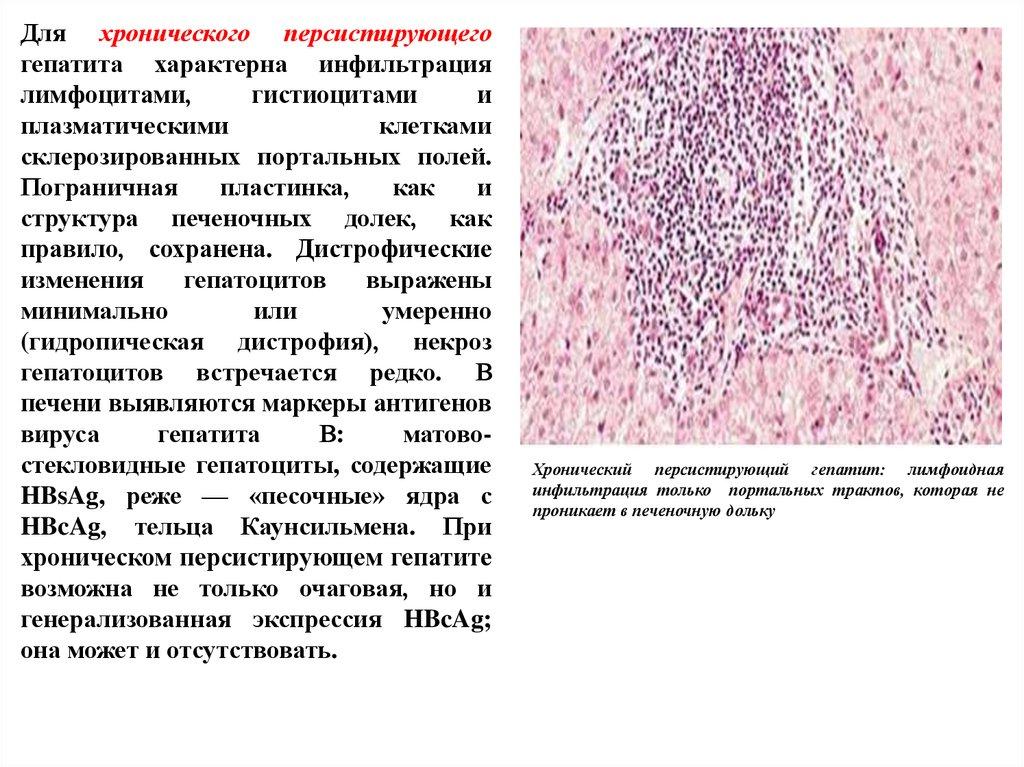 Лекарства при псориазе от печени